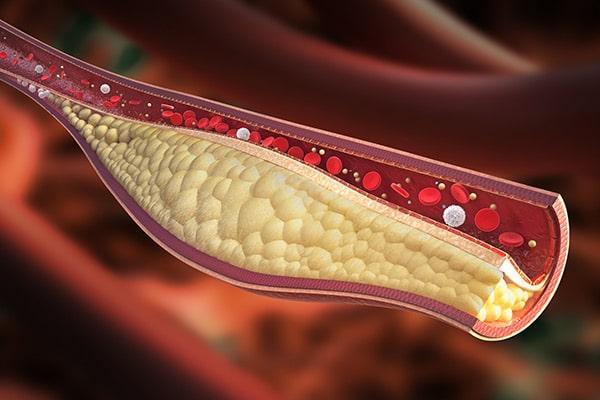 Cholesterol is Silent Killer